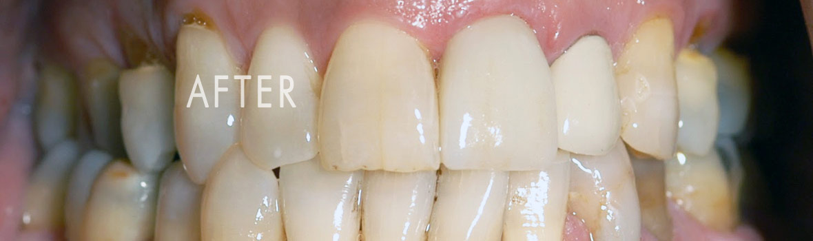 after-single-tooth-crown-cap