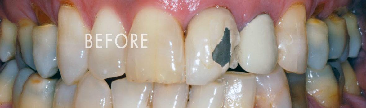 before-single-tooth-crown-cap