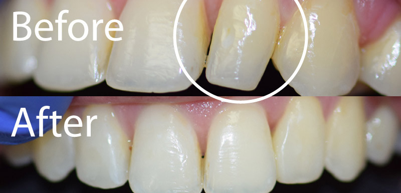 Peg Lateral Small Tooth