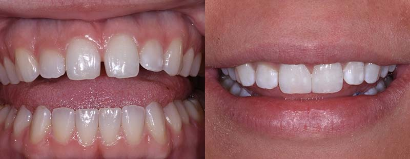 Diastema Closure Before After