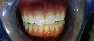 Before ICON Teeth Whitening