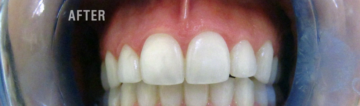 After-Fort-Collins-Teeth-Whitening-Treatments