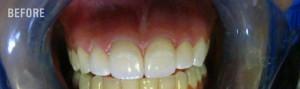 Before Teeth Whitening
