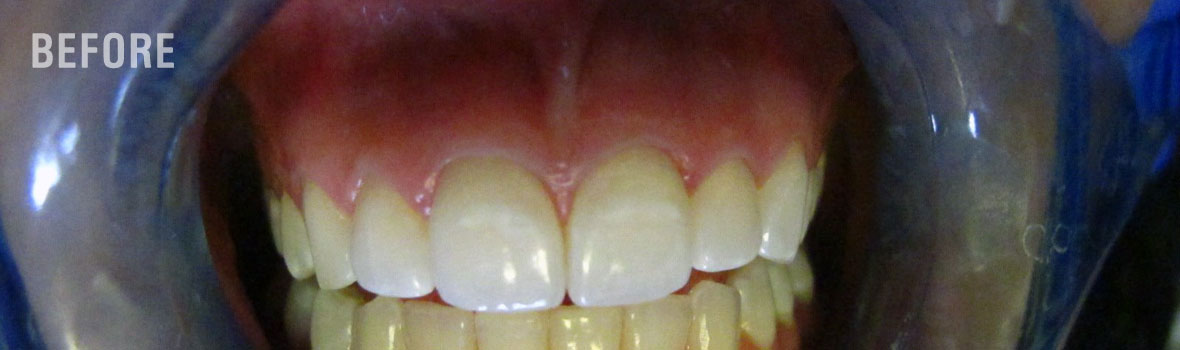 Before-Fort-Collins-Teeth-Whitening-Treatments