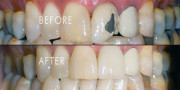 Before After Tooth Crown Cap
