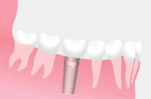 Dental Implant Restoration
