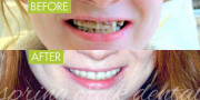Tooth Implant Restoration