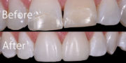 Teeth Whitening Composite Veneers