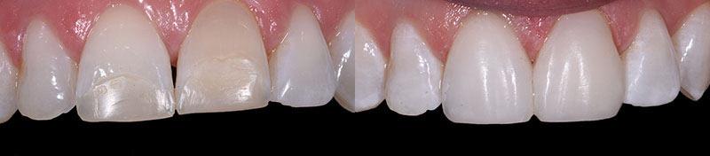 Tooth Whitening Composite Veneers
