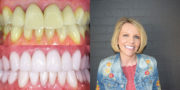 Crowns Veneers Case