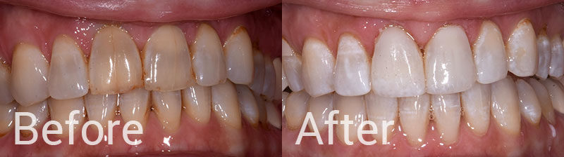 Before After Whitening Teeth Composite Veneers
