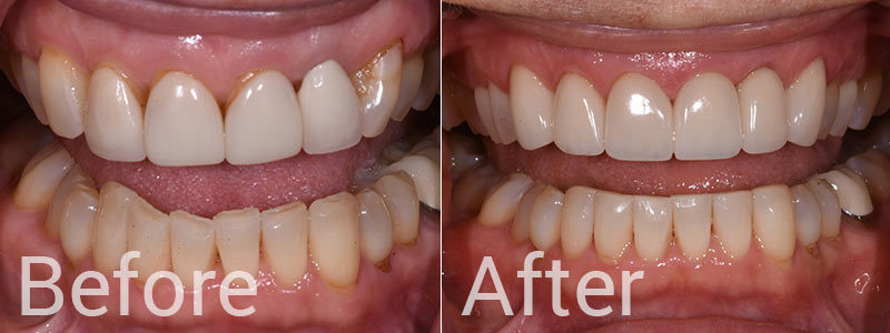 Dental Crowns Before After Photo